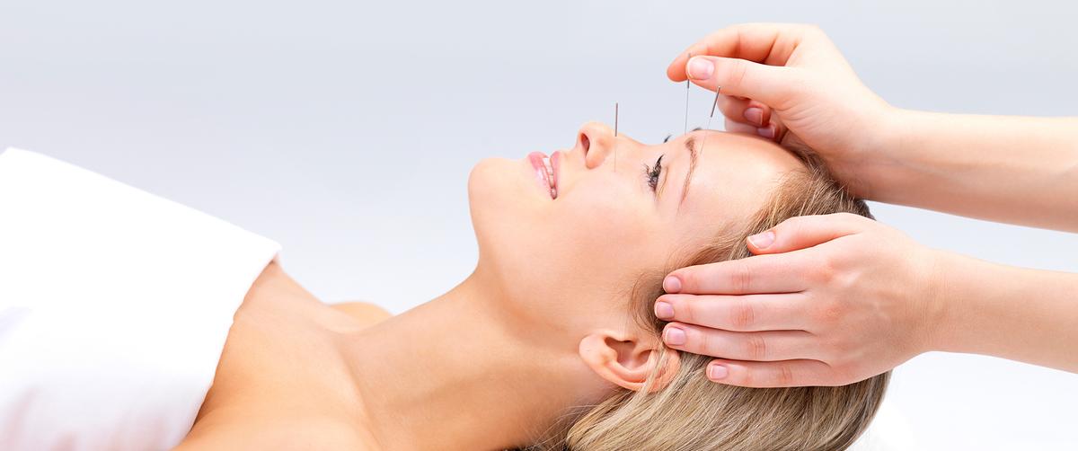 acupunture-treatment